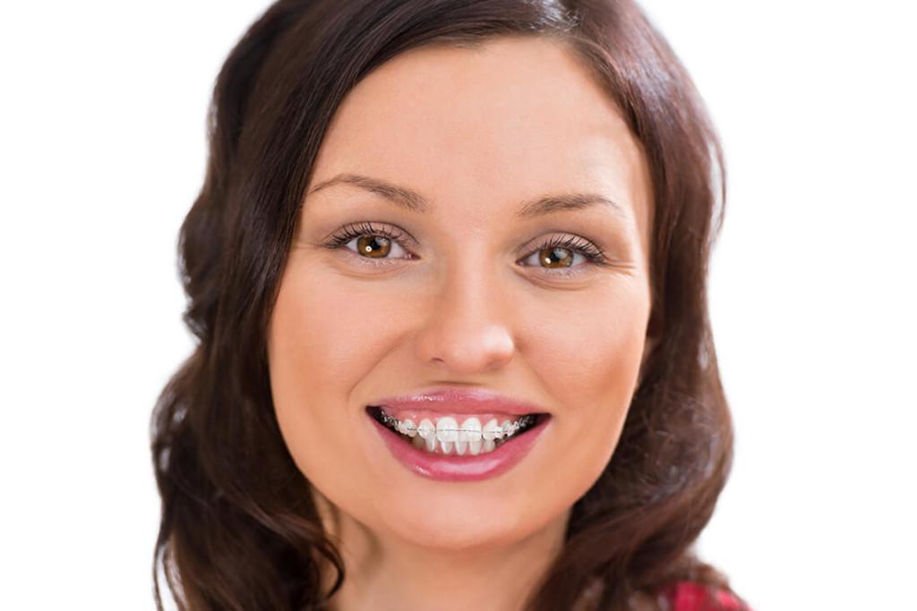 Kieferorthopäde Bretten -König - Ästhetische Zahnheilkunde